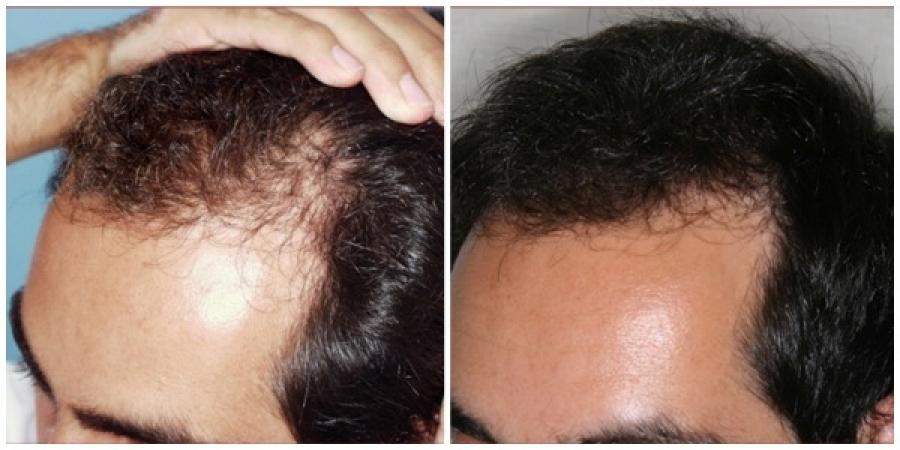La máscara para los cabellos de las vitaminas contra la caída
