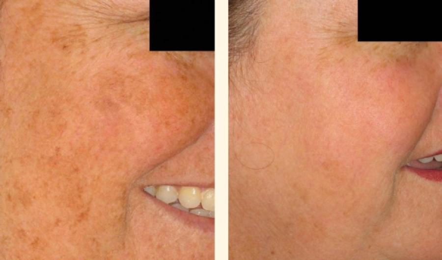 Dermatoscop 237 A Dermatologia En Lima Dermatologos En Lima