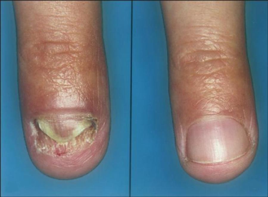 prostitutas peru dedos de los pies