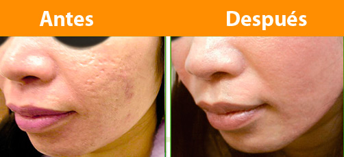 Harmony L 225 Ser Dermatologia En Lima Dermatologos En Lima