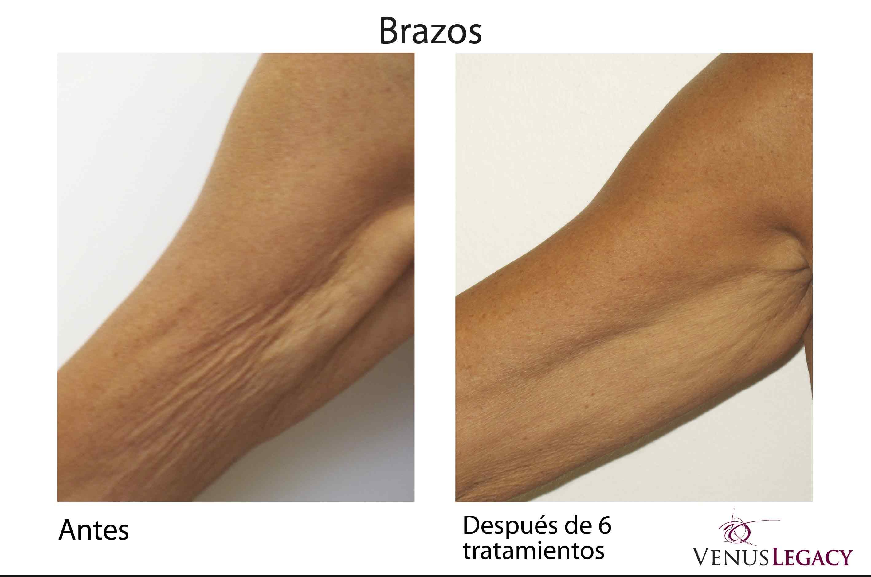 Venus Legacy Dermatologia En Lima Dermatologos En Lima