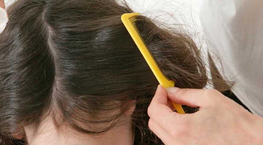 Hongos en la cabeza pies y manos aplica este remedio y elim nalos definitivamente - Eliminar hongos de la pared ...